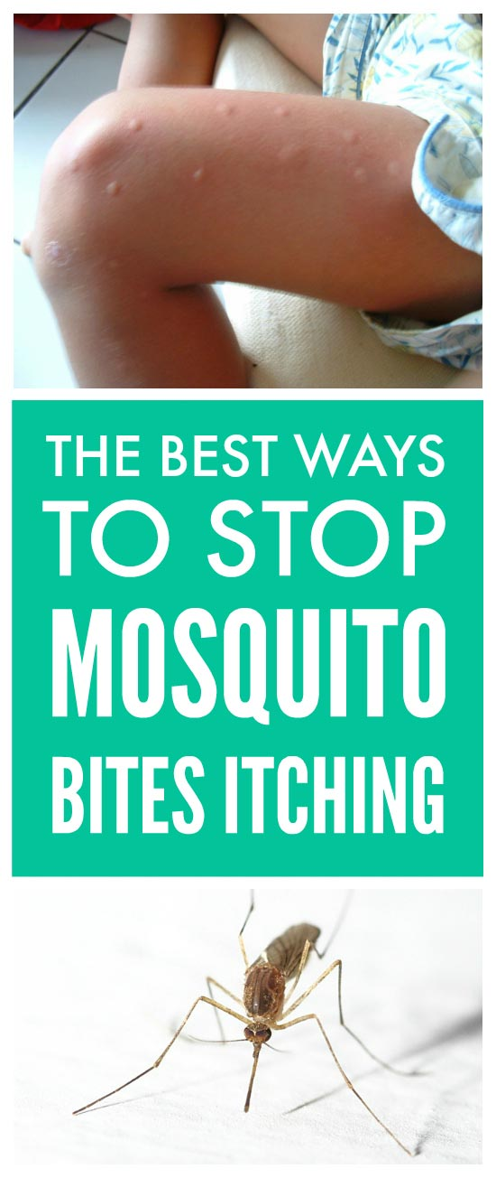 Stop mosquito bites itching