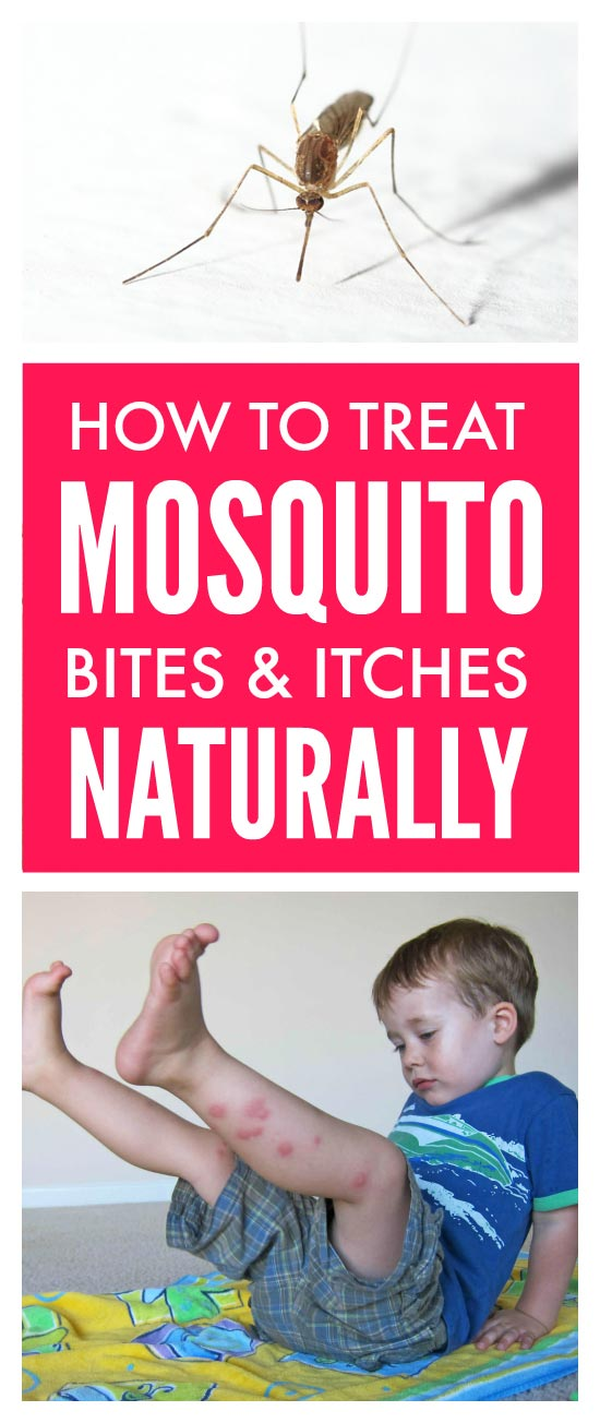 Treat mosquito bites naturally