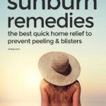 Best Quick Home Sunburn Remedies