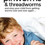 How To Get Rid Of Pinworms And Threadworms